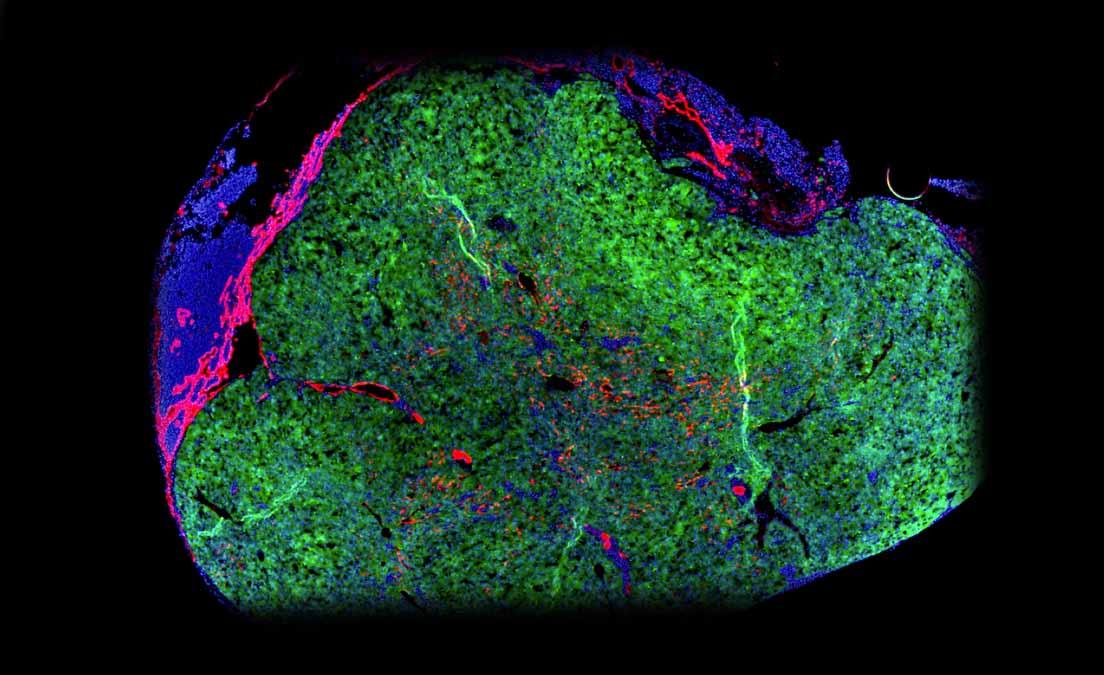 LyGenesis raises $4m ahead of Phase 2a trials